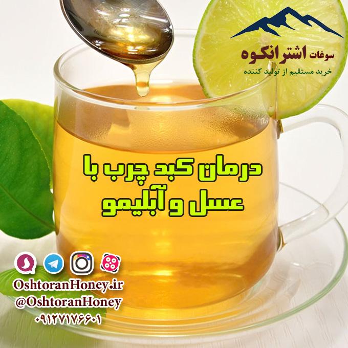 درمان کبد چرب با عسل طبیعی